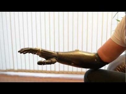 The world's most advanced Prosthetic Hand - bebionic | Medical Engineering = MEDINEERING | Scoop.it