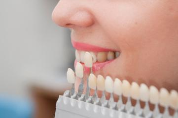 Recreate the Natural Look of Your Teeth with Dental Veneers | Cosmetic Dentist | Scoop.it