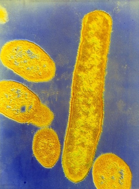 Gut Microbes Linked to Autismlike Symptoms in Mice - Science Now | Plant and Microbes | Scoop.it