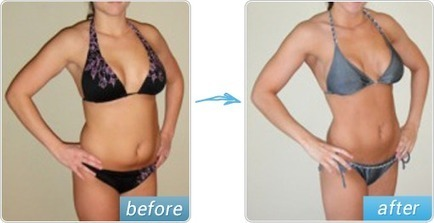 Garcinia Cambogia for Weight Loss - The Detox Diet to Burn Fat and Lose Weight Fast   Hire Sparkling Limousine Services in Bay Area and Make your Trip Terrific   Scoop.it