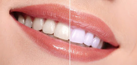 Understand teeth whitening and Why You Should Consider it? | Smile Creation Dental Clinic | Scoop.it