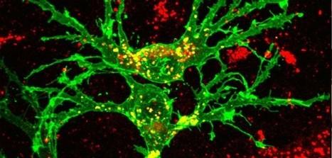 A supplement for myelin regeneration #MS #chatMS #krabbe | Overcoming Multiple Sclerosis | Scoop.it