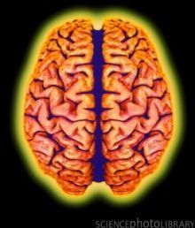 » How Depression, Stress Trigger Loss of Brain Volume - Psych Central News | Research | Scoop.it