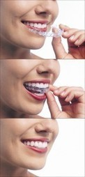 Straighten Your Smile Easily with Invisalign Treatment from Dr. R. Sidhu - Dr. R. Sidhu Dentistry Inc | Dentist Surrey | Scoop.it