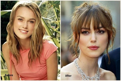 Keira Knightley Plastic Surgery Before and After Photo 2013-2014 | Beauty | Scoop.it