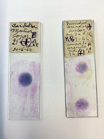In Decades Old Slides, Drops of Blood and Hints of Malaria's Path | Recull de premsa del Servei de Control de Mosquits | Scoop.it