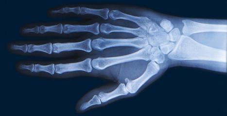 Innovative Treatments for Rheumatoid Arthritis Improve the Lives of Patients | Our-arthritis.com Community | Scoop.it