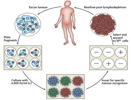 Tumor Infiltrating Lymphocytes (TIL) : Lion Biotechnologies | Immunology and Biotherapies | Scoop.it