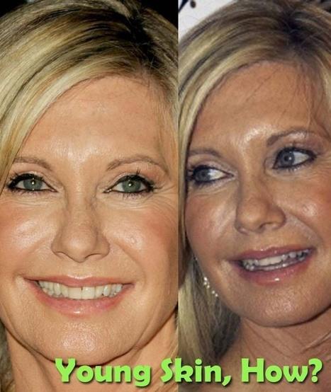 Olivia Newton John Plastic Surgery | Celebrity Plastic Surgery | Scoop.it