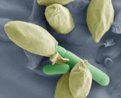 Spores for thought: Study provides new insights into Clostridium spores   Institute of Food Research News   Scoop.it