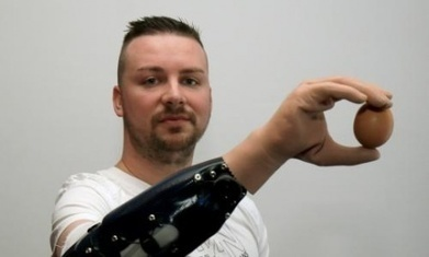 Bionic reconstruction gives men first prosthetic hands controlled by mind | Organ Donation & Transplant Matters Resources | Scoop.it