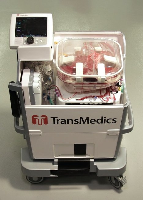 TransMedics Announces The World's First Human Liver Transplantation Using The Organ Care System (OCS™) Liver Technology & The Initiation of The OCS™ Liver PROTECT U.S. Pivotal Trial: TransMedics, Inc. | Organ Donation & Transplant Matters Resources | Scoop.it