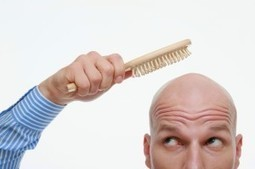Know The Best Types of Hair Transplant Available For You | Dental Implants & Hair Transplant | Scoop.it