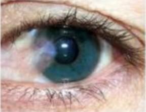 Pterigión: Una enfermedad ocular provocada por la excesiva exposición a los Rayos UV | Lentes de contacto | Scoop.it