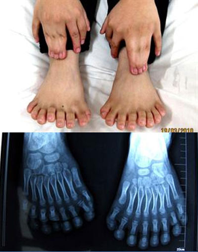 Un petit chinois avec 15 doigts et 16 orteils subit une intervention chirurgicale pour supprimer le surplus ! | Mais n'importe quoi ! | Scoop.it