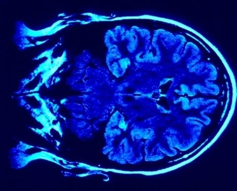 Neuroplasticidad: la capacidad de recrearnos - Ojo Cientifico | Creatividad e innovacion | Scoop.it