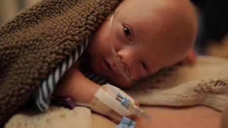 VIDEO. La première année d'un bébé prématuré émeut les internautes | Autour de la puériculture, des parents et leurs bébés | Scoop.it