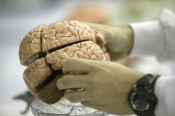 Scientists Make Surprise Finding in Stroke Research | Biomedical Beat | Scoop.it