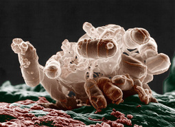 Antibiotic resistance transfer: where's the culprit? | Media Cultures: Microbiology in the news | Scoop.it
