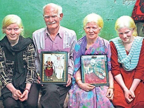 The World's Biggest Albino Family | Strange days indeed... | Scoop.it