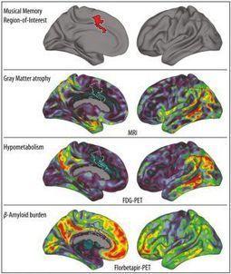 El alzhéimer no puede con la música | Curiosidades sobre la música | Scoop.it