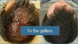 Hair Loss Treatment | Prohair Clinic | Scoop.it