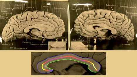 This is why Einstein's brain was better than yours | Gavagai | Scoop.it