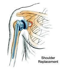 Best Shoulder Replacement Surgery Chennai | Rotator Cuff Repair India | Best Orthopedic Hospital in Chennai | Scoop.it