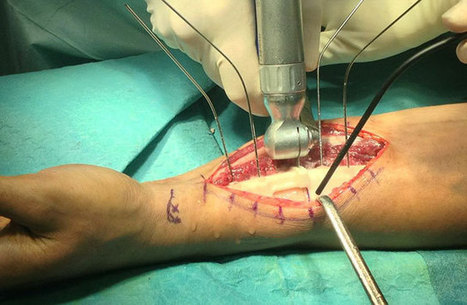 3D printed surgical guides save Malaysian man's arm | impression 3D | Scoop.it