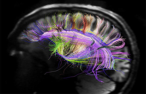 Neuroplasticity: Your Brain's Amazing Ability to Form New Habits | Neuroscience | Scoop.it