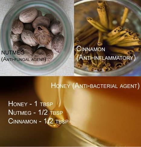 Cinnamon and Honey for Acne - Skin Disease Remedies   Skin Disease Remedies   Scoop.it