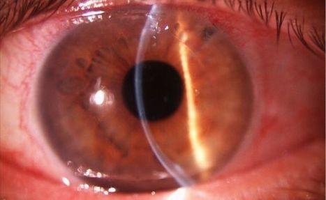 Asocian el consumo prolongado de aspirina con la DMAE   Salud Visual 2.0   Scoop.it