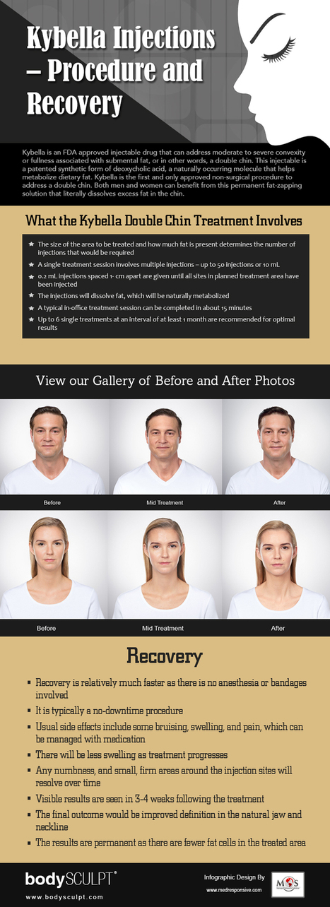 Kybella Injections - Procedure and Recovery | plastic surgery | Scoop.it