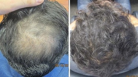 Case Study: Hair Loss Causes Explained | Ashley and Martin | Hair Regrowth | Scoop.it