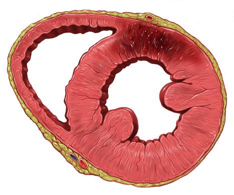 Diagnóstico de muerte súbita cardíaca, ¿algo nuevo?/Diagnosis of sudden cardiac death, anything new?   PATOLOGÍA FORENSE   Scoop.it