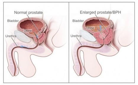 Remedies For Enlarged Prostate And Prostate Inflammation: Do You Really Need It? This Will Help You Decide! - Fit And Neat | Fit And Neat | Scoop.it