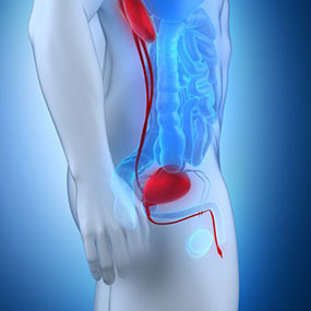 Get the Benign Prostatic Hyperplasia Treatment and Improves Your Prostate Health   Prostate Massagers - High Island Health   Scoop.it