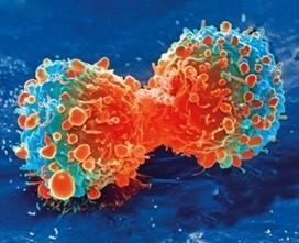 Mapa interactivo: Qué genera cáncer realmente   Diagnostrum   Promoción de la salud en el trabajo   Scoop.it
