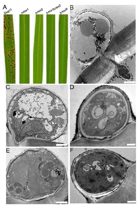 PNAS: NADPH oxidases regulate septin-mediated cytoskeletal remodeling during plant infection by the rice blast fungus (2013) | Effectors and Plant Immunity | Scoop.it