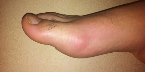 Home Remedies For Gout | Best | Natural | Homesanjeevini | Best Home remedies | Scoop.it