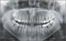 Best Digital Dental X- Ray Systems in Kanata - Kanatadentistry.ca   Best Dentist in Kanata   Scoop.it