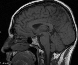 MRI shows brain disruption in patients with post-concussion syndrome | Cognitive Psychology. Cognitive and behavioural Neuroscience | Scoop.it
