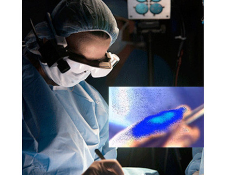 Researchers develop smartglasses that help surgeons see cancerous cells | Realms of Healthcare and Business | Scoop.it