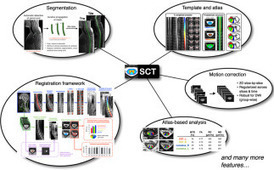 SCT: Spinal Cord Toolbox, an open-source software for processing spinal cord MRI data | Osteoporosis New drugs Review | Scoop.it