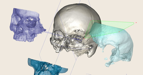 The Bizarre, Bony-Looking Future of Algorithmic Design   Entreprise et innovation   Scoop.it