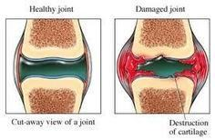 What Kinds of People are Easy to Get Osteoarthritis - Holiping TCM Hospital   Rheumatoid Hospital   Scoop.it