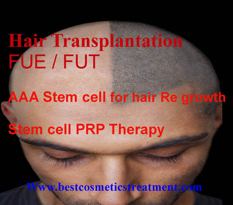 Hair Treatment from Stem Cell & PRP   bestcosmeticstreatment.com   Scoop.it