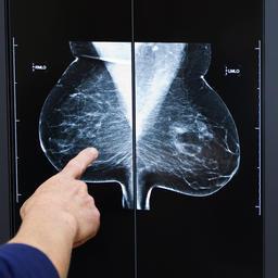 Bedrijf test 3d-geprint borstweefsel voor borstkankerpatiënten   3D Printing news (related to 3Dprinterblog.nl)   Scoop.it