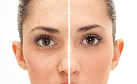 6 Ways to Get Rid Of Body Acne | Health | Scoop.it