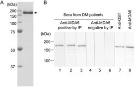 Clinical Utility of an Enzyme-Linked Immunosorbent Assay for Detecting Anti-Melanoma Differentiation-Associated Gene 5 Autoantibodies | Melanoma BRAF Inhibitors Review | Scoop.it
